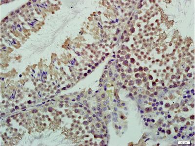 CASC5 Antibody
