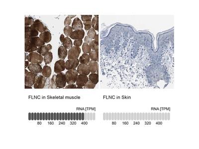 FLNC Antibody
