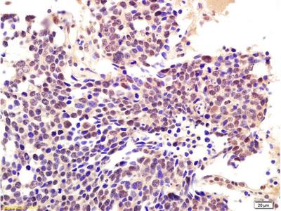 RNF56 Antibody, HRP Conjugated