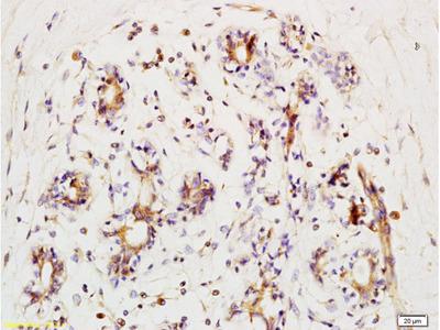 BRIP1 (Ser990) Antibody