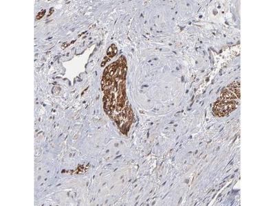 CHL-1/L1CAM-2 Antibody
