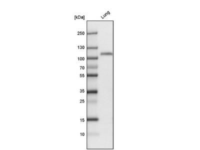 Thrombomodulin /BDCA-3 Antibody