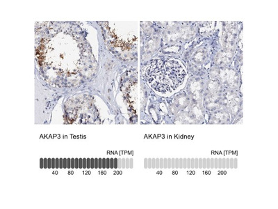AKAP3 Antibody