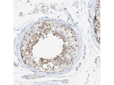 SLC25A31 Antibody