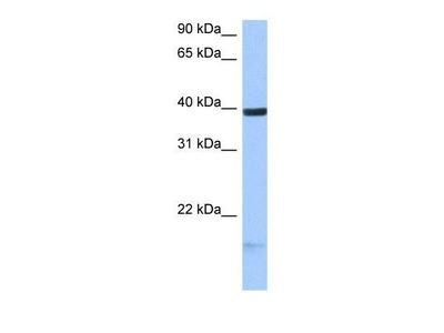 HS3ST5 Antibody