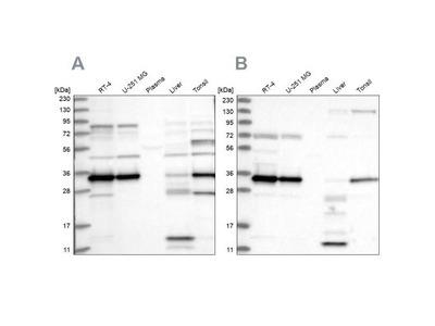 SUCLG1 Antibody
