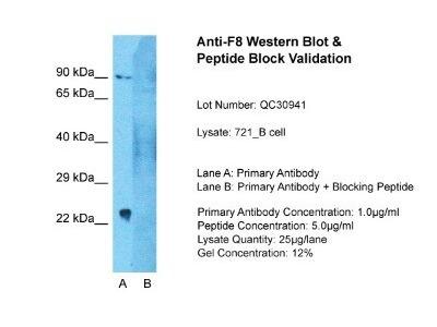Factor VIII A2 domain Antibody