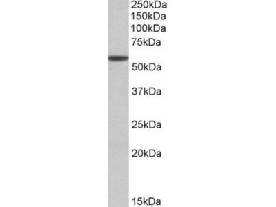 Goat Polyclonal Aldehyde Dehydrogenase 3-A1 / ALDH3A1 Antibody