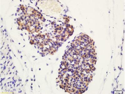 ATG4D(Ser467) Polyclonal Antibody