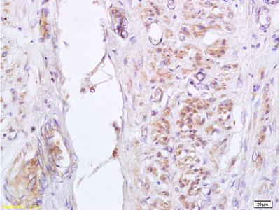 GADD153 (Ser30) Antibody