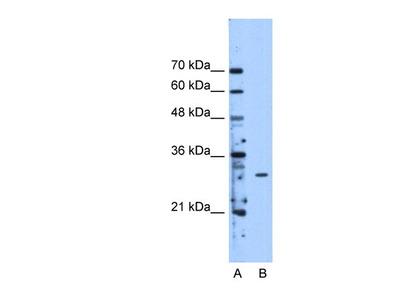 Rabbit Polyclonal METTL1 Antibody