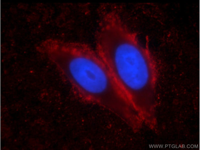 IA-2/PTPRN Antibody (1D3F5)