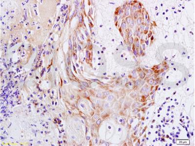 S100A15 Antibody, Cy3 Conjugated