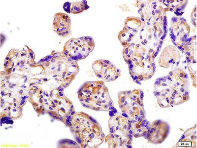 hCG beta Polyclonal Antibody, Biotin Conjugated
