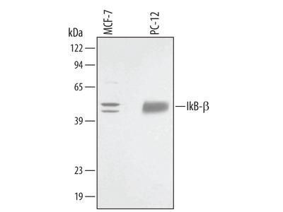 IkB-beta Antibody