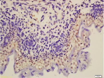 Thyroid Hormone Receptor Antibody
