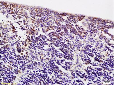 ACBD6 Antibody
