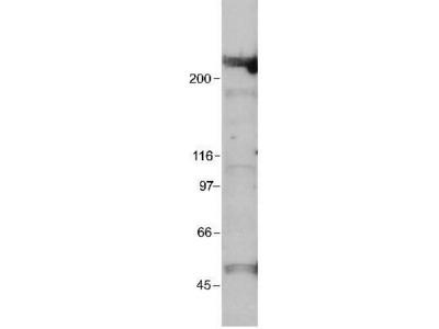 Anti-EP300 antibody [RW109]