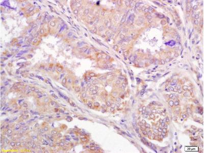 TRIM25 Polyclonal Antibody