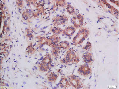 Mitofusin 2 Antibody
