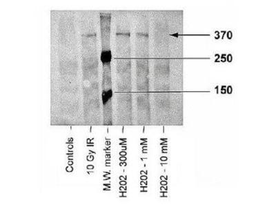 Anti-ATM (phospho Ser1981) antibody [10H11.E12]