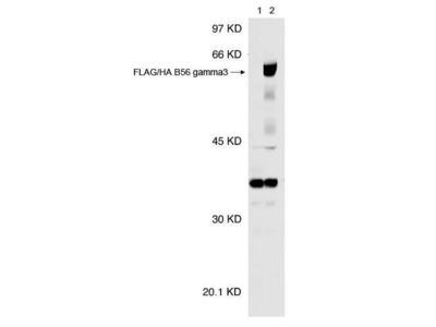 Anti-PPP2R5C antibody [TQ11-1G6]