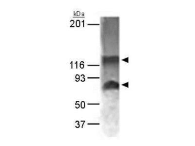 Anti-NABC1 antibody