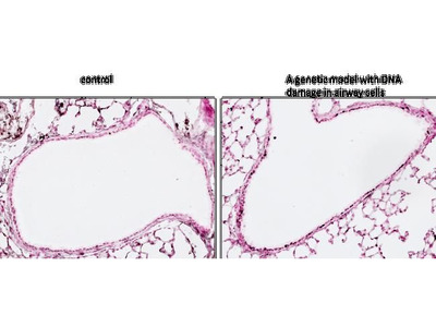 Anti-Histone H2A.XS139ph (phospho Ser139) antibody [3F2]