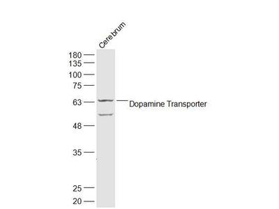 DAT/Dopamine transporter Antibody, Cy3 Conjugated
