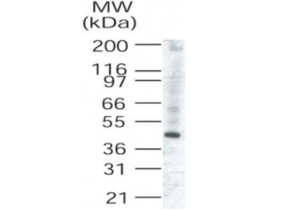 Anti-TRIB3 antibody