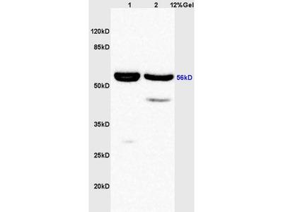 AKT1+2+3 (Tyr315+316+312) Antibody