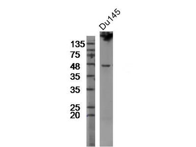 TMPRSS2 Polyclonal Antibody