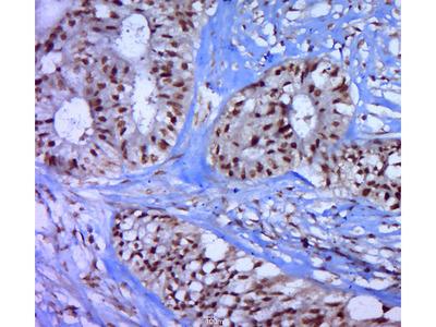 P53(Thr55) Antibody