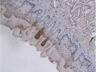 AKR1B1 Antibody, Biotin Conjugated
