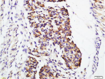 Galectin 1 Antibody