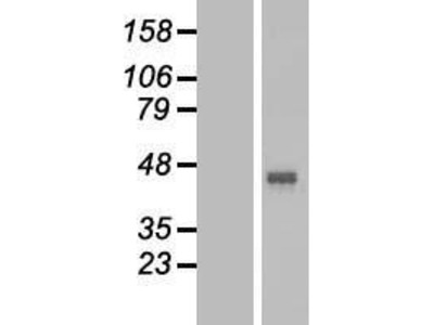 GPR172B (SLC52A1) (NM_001104577) Human Over-expression Lysate