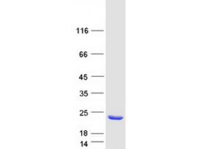 AHNAK (NM_024060) Human Mass Spec Standard