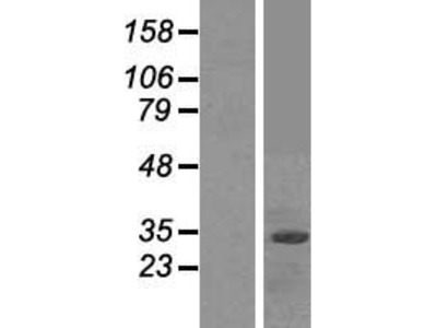 Transient overexpression lysate of F-box protein 2 (FBXO2)