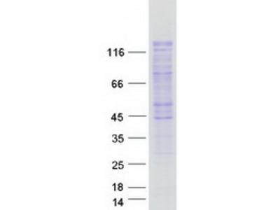 SMARCAD1 (NM_020159) Human Mass Spec Standard