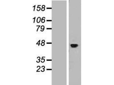Transient overexpression lysate of interleukin 11 receptor, alpha (IL11RA), transcript variant 3