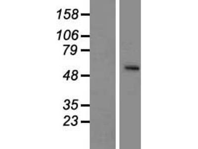 SLC24A5 (NM_205850) Human Over-expression Lysate