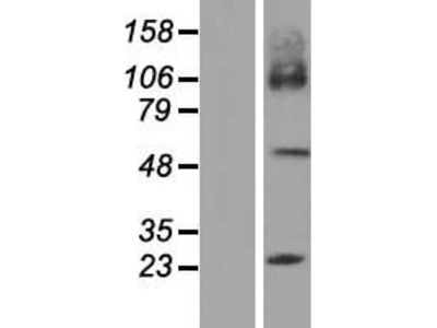 SLC7A7 (NM_001126106) Human Over-expression Lysate