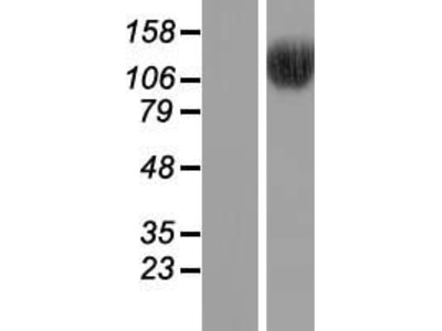 Transient overexpression lysate of bromodomain containing 8 (BRD8), transcript variant 2
