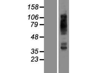Transient overexpression lysate of solute carrier family 2 (facilitated glucose transporter), member 4 (SLC2A4)