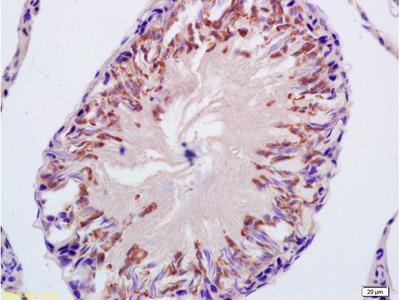 CYP21 Antibody, Biotin Conjugated