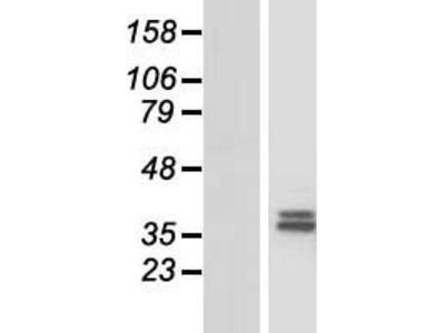 CHST13 (NM_152889) Human Over-expression Lysate