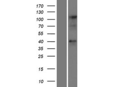 Transient overexpression lysate of chemokine (C-C motif) receptor-like 2 (CCRL2), transcript variant 2