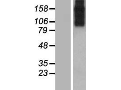 SLC8A3 (NM_058240) Human Over-expression Lysate