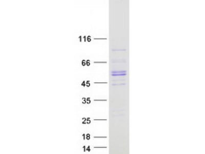 SQOR (NM_021199) Human Recombinant Protein
