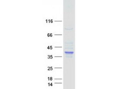 SDS (NM_006843) Human Recombinant Protein